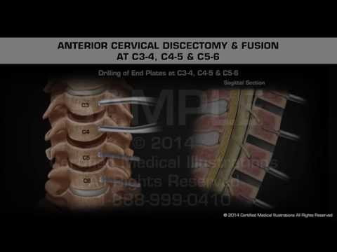 Anterior Cervical Discectomy & Fusion at C3-4, C4-5 & C5-6