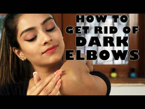 How To Get Rid Of Dark Elbows | Remove Darkness From Elbows | Skincare Tutorial | Foxy Makeup