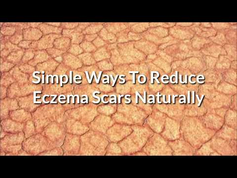How To Get Rid Of Eczema Scars/ Eczema Scars Treatment At Home.