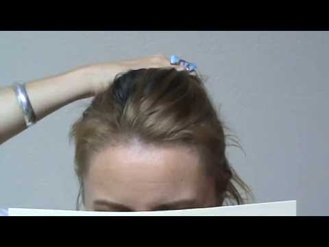 woman-hair-transplant-restoration-surgery-before-after-result-bald-high-hairline-www.mhtaclinic.com