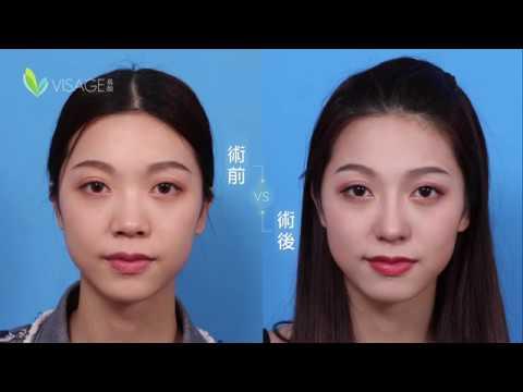 結構式隆鼻丨海外網紅慕名而來 顏值再升級 韋志曄醫師隆鼻 - YouTube