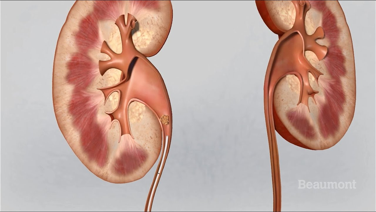 Kidney Stones Symptoms and Treatments - YouTube