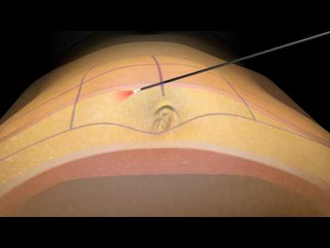SmartLipo Laser Liposuction - How it works - Houston, TX