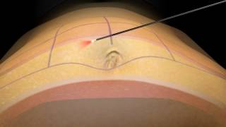 SmartLipo Laser Liposuction - How it works - Houston, TX