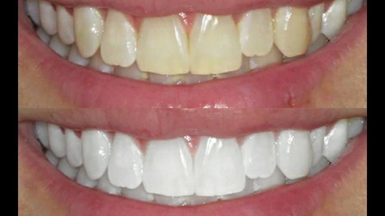Como Clarear Os Dentes Em Casa Em 2 Minutos 2 Receita Inedita