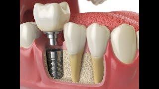 ★ Установка зубных имплантов. Стоит ли их ставить. Двухэтапная имплантация зубов