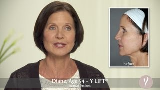 Y LIFT ® 2013 - Diane | Instant, Non Surgical Facelift