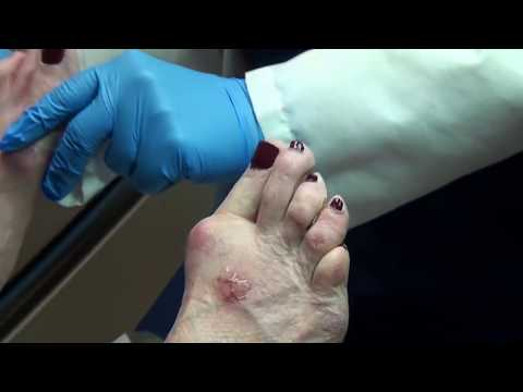 Trimming Painful Corns on Toes