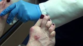 Painful Corns Toes