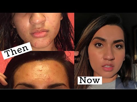 How I Cleared Up My Skin + My Acne Story