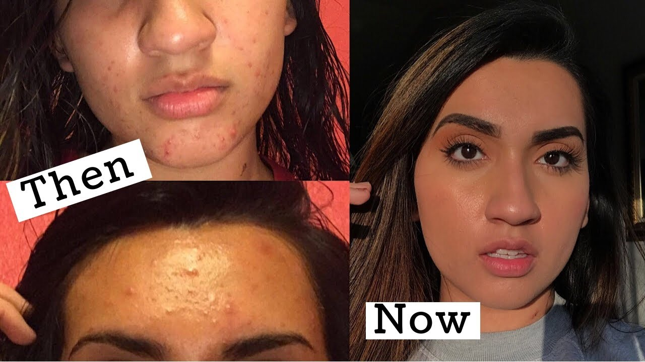 How I Cleared Up My Skin My Acne Story Youtube