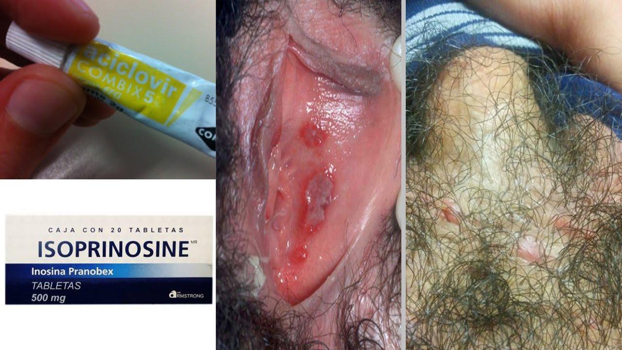 medicamentos para el herpes genital recurrente