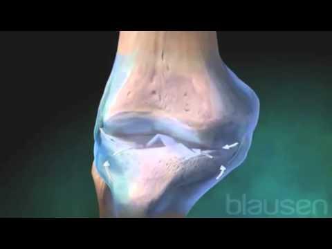 Визуальная ревматология