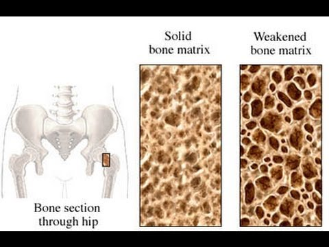 Bone Health-Dr. Ed Park's Podcast 6