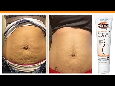 Top 5 Best Stretch Mark Cream Reviews 2017 Youtube