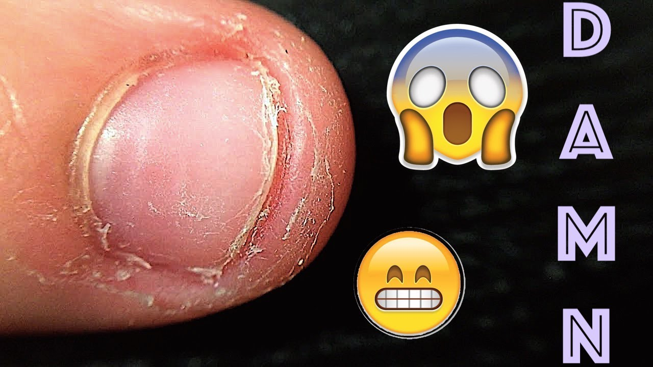 How to Grow Out Bitten Nails | Stop Nail Biting Guide