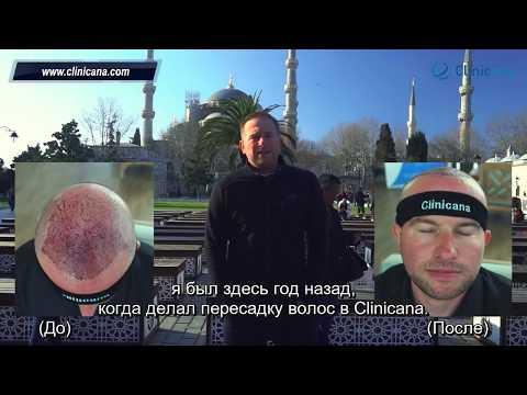 Видео отзыв Кевина из Лондона о клинике Clinicana, пересадка волос в Турции, лечение облысения