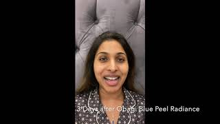 What to expect during and after Obagi Blue Peel Radiance at Skin Enhance Clinic thumbnail
