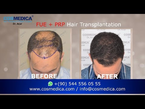 THE RESULT ! FUE  Hair Transplantation experience with DR.ACAR (NW 5 hairloss ,1 session)
