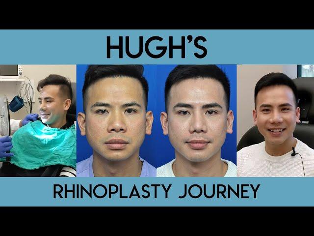 Hugh's Rhinoplasty Journey