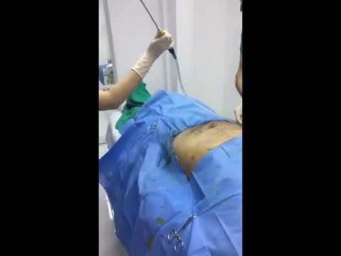 XENO clinic liposuction customer procedure