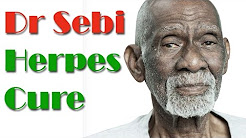 Dr Sebi Herpes Treatment | Natural Treatment For Herpes By Dr Sebi