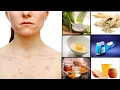 Top 6 Natural Remedies to Get Rid of Chest Acne Fast