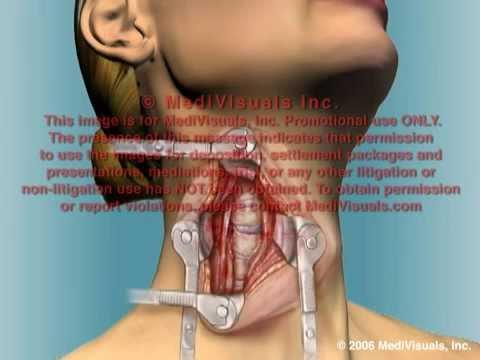 C4 5 Anterior Cervical Fusion