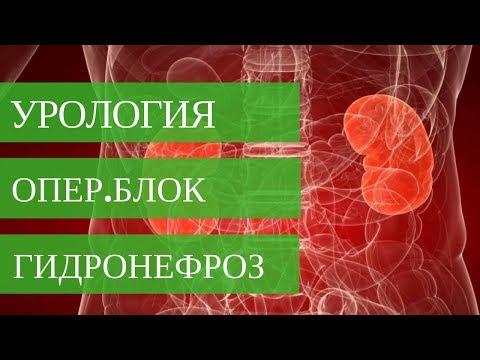 ГИДРОНЕФРОЗ ПОЧКИ - оперирует Стаховский А.Э. Диагностика и лечение патологий почек.