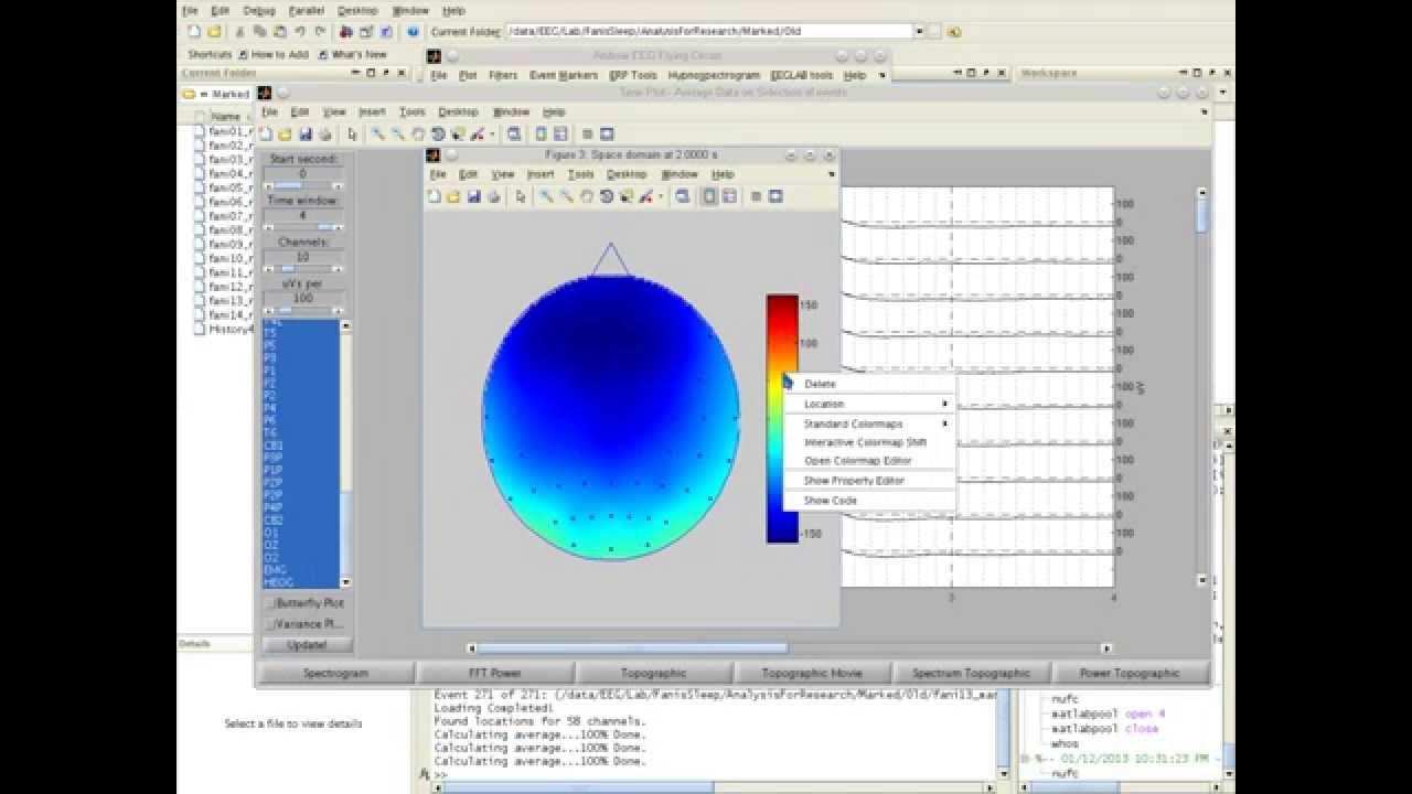 Sleep EEG Data Analysis Process