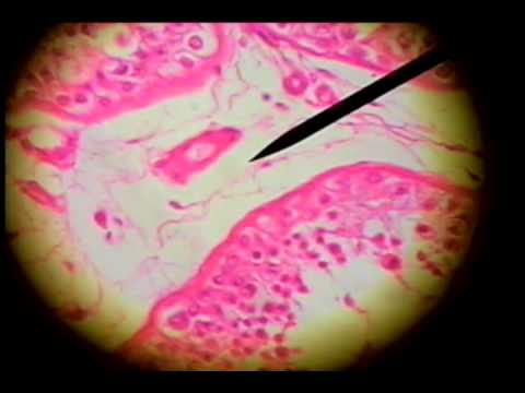 Slide 67 Testis Male Reproductive System Youtube