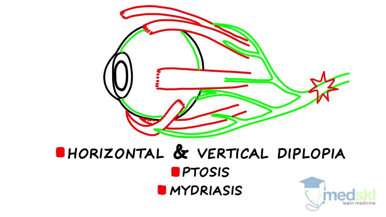 egyidejű látás és diplopia