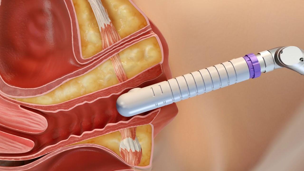 Éhség kezelés prosztatitis Hogyan lehet meghatározni hogy mi a prosztatitis