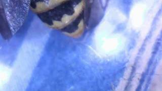 Yellow Jacket Stinger magnified 40 times - Watch It Sting! Friggin NUTS