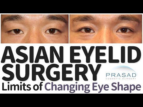 Why there are Limits to Changing Eye Shape in Asian Double Eyelid Surgery