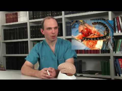 Interview with Jeffrey Ojemann, M.D., neurosurgeon