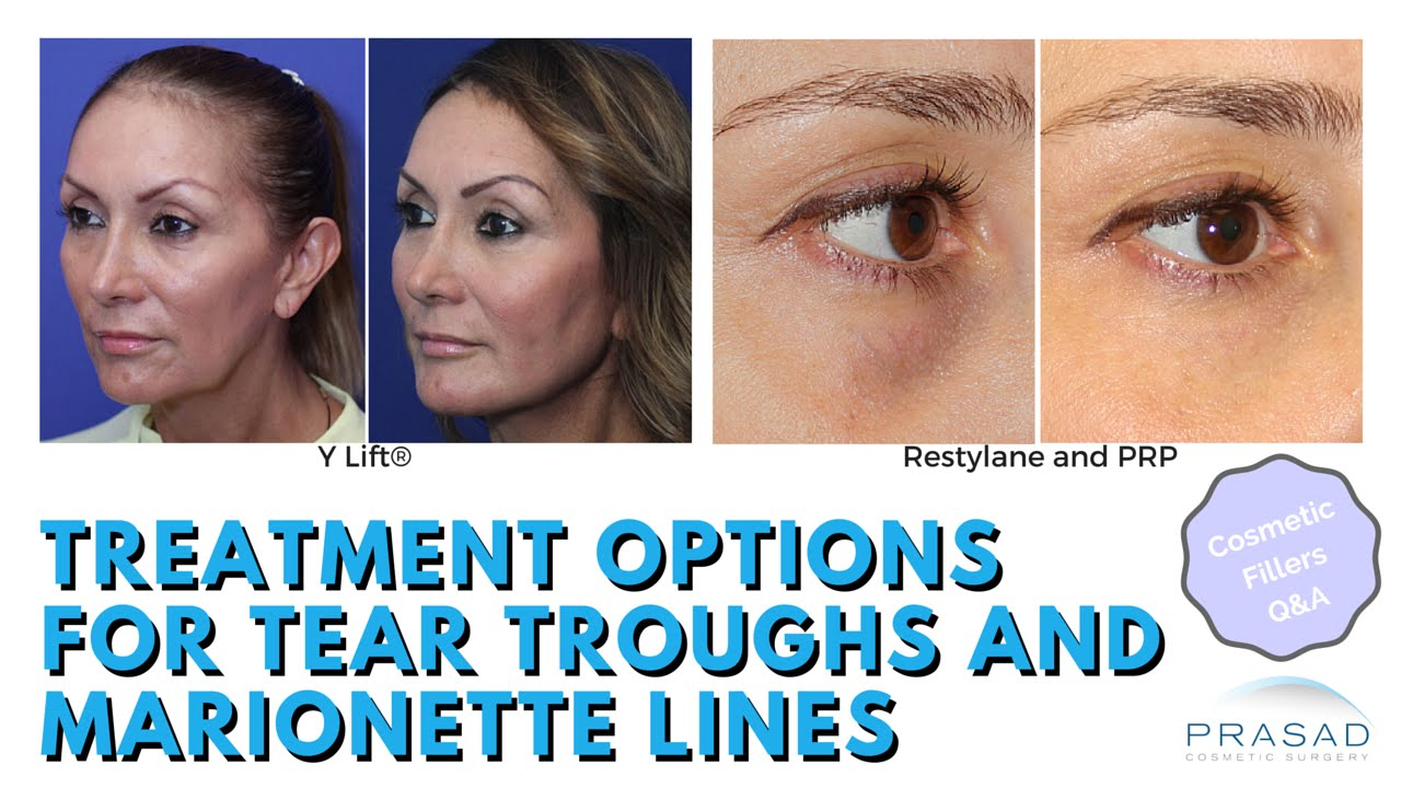 Restylane Treatment | Cosmetic Injections | New York City