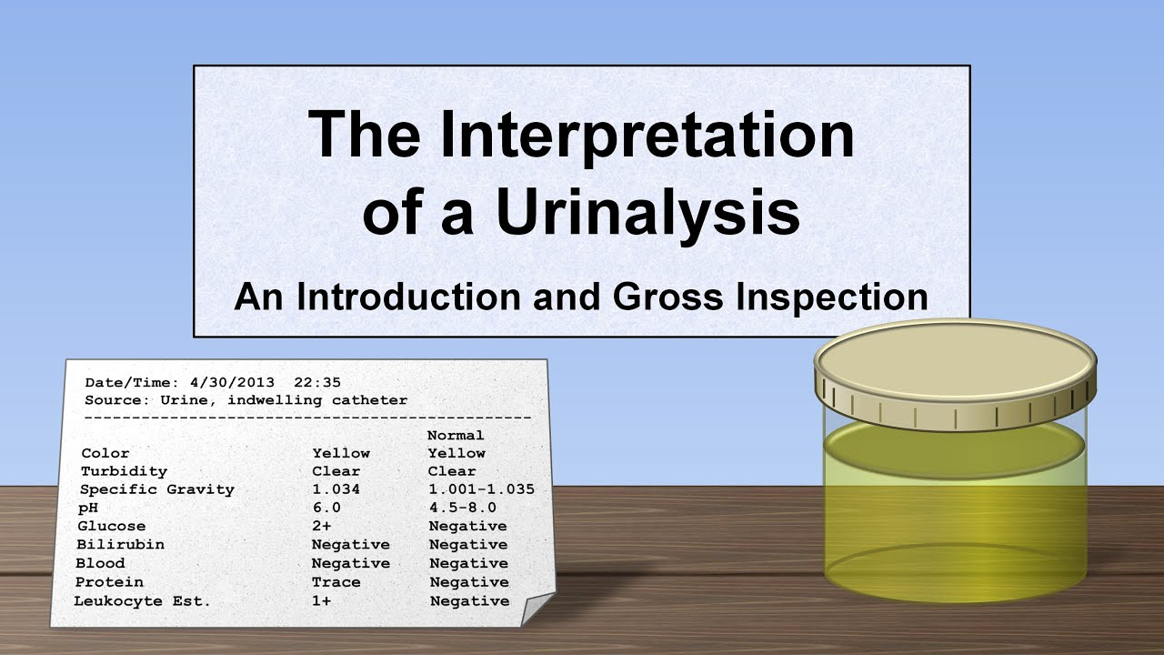 Interpretation Of The Urinalysis Part 1 Introduction And Inspection
