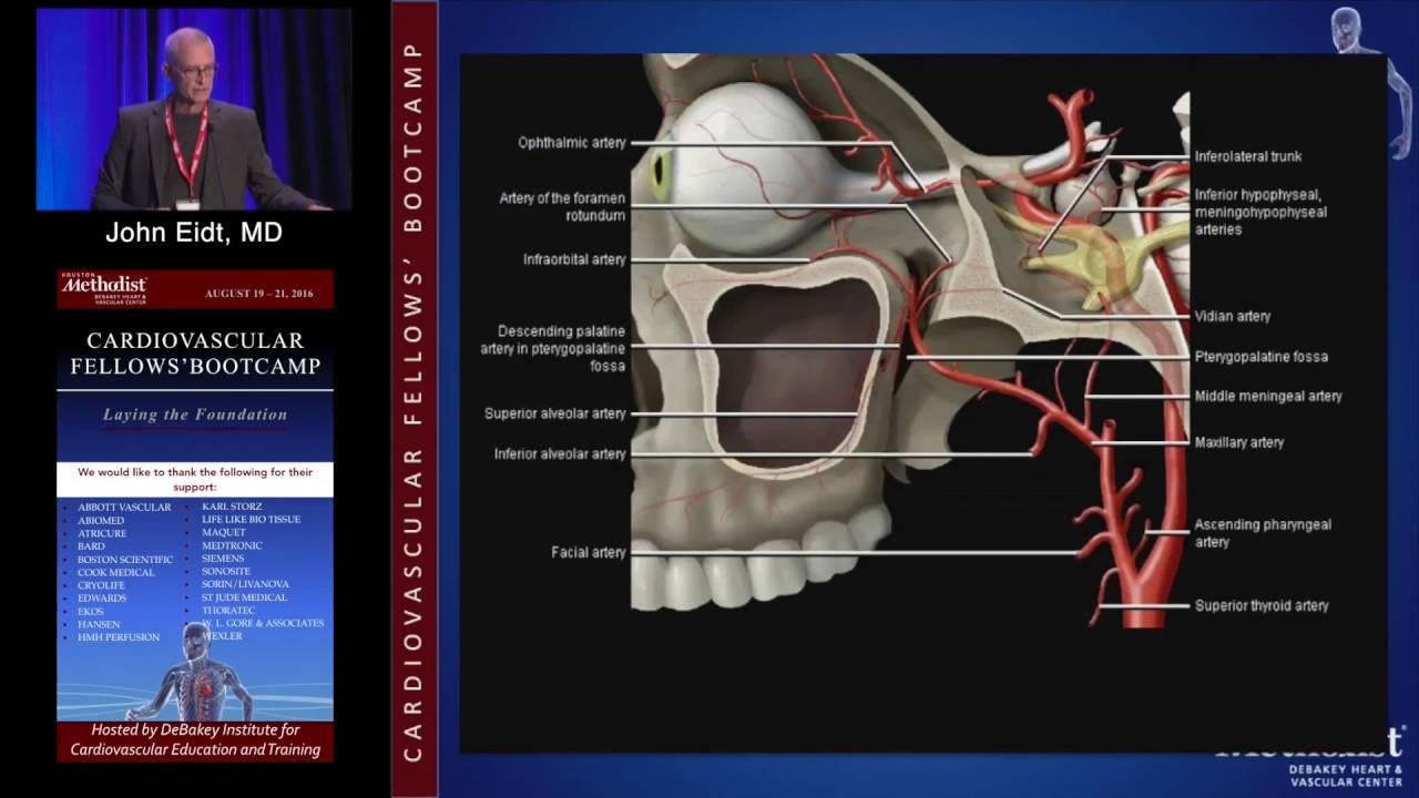 Neurovascular Anatomy, Physiology and Carotid Imaging (John Eidt, MD ...