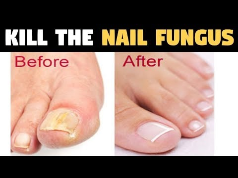 They call it the fungal killer | Kill the nail fungus in one pass  AWESOME
