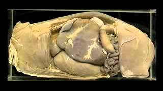 Lateral View Of The Abdomen Of A Young Ruminant-veteology.wmv - Youtube