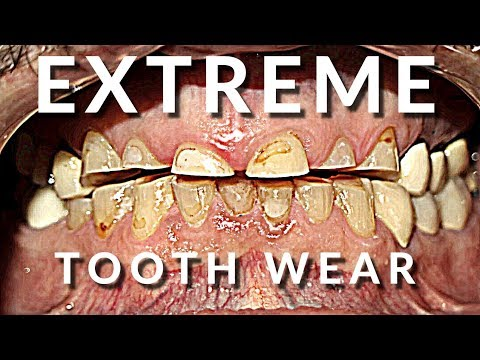 Extreme Smile Makeover 😁- Full Mouth Dental Crowns and Veneers
