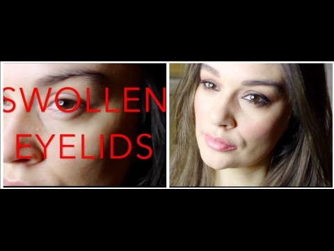 How to Cover Up Swollen Eyelids with Makeup