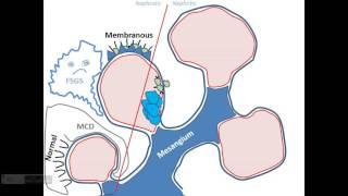Обзор патогенеза болезней клубочков