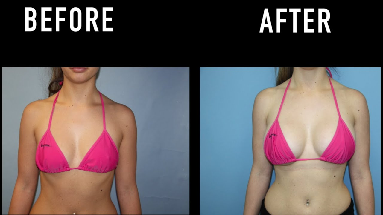 Breast Augmentation Before & After Photos - Breast