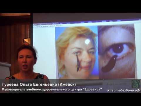 Гуреева Ольга (УОЦ Ольги Гуреевой, Ижевск) Гирудотерапия - лечение пиявками