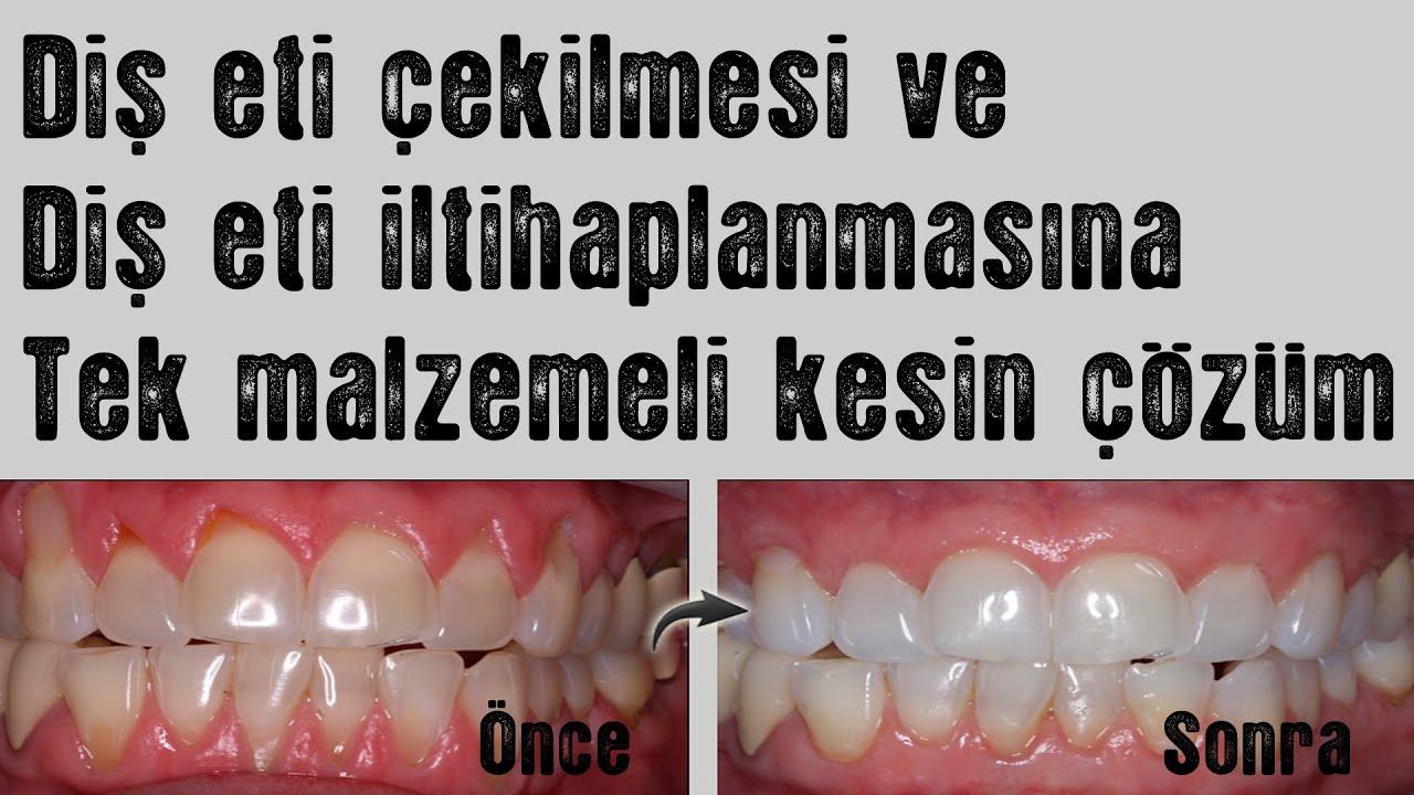 Diş eti çekilmesi ve diş eti iltihaplanmasına tek malzemeli çözüm