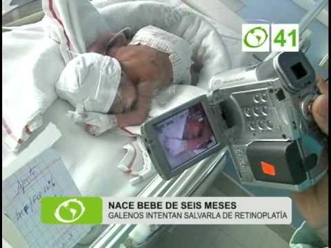 Nace beb de seis meses trujillo youtube - Tos bebe 6 meses ...