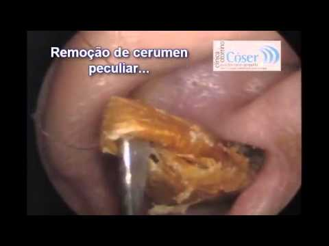 How to get rid of ear wax how to get rid of ear wax at home how how ear ccuart Image collections