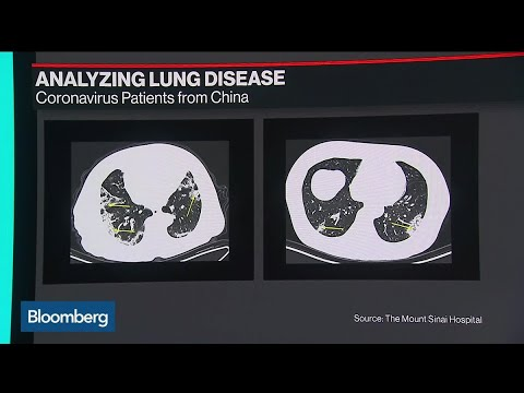 How Lung Scans Are Helping Doctors Learn About Coronavirus